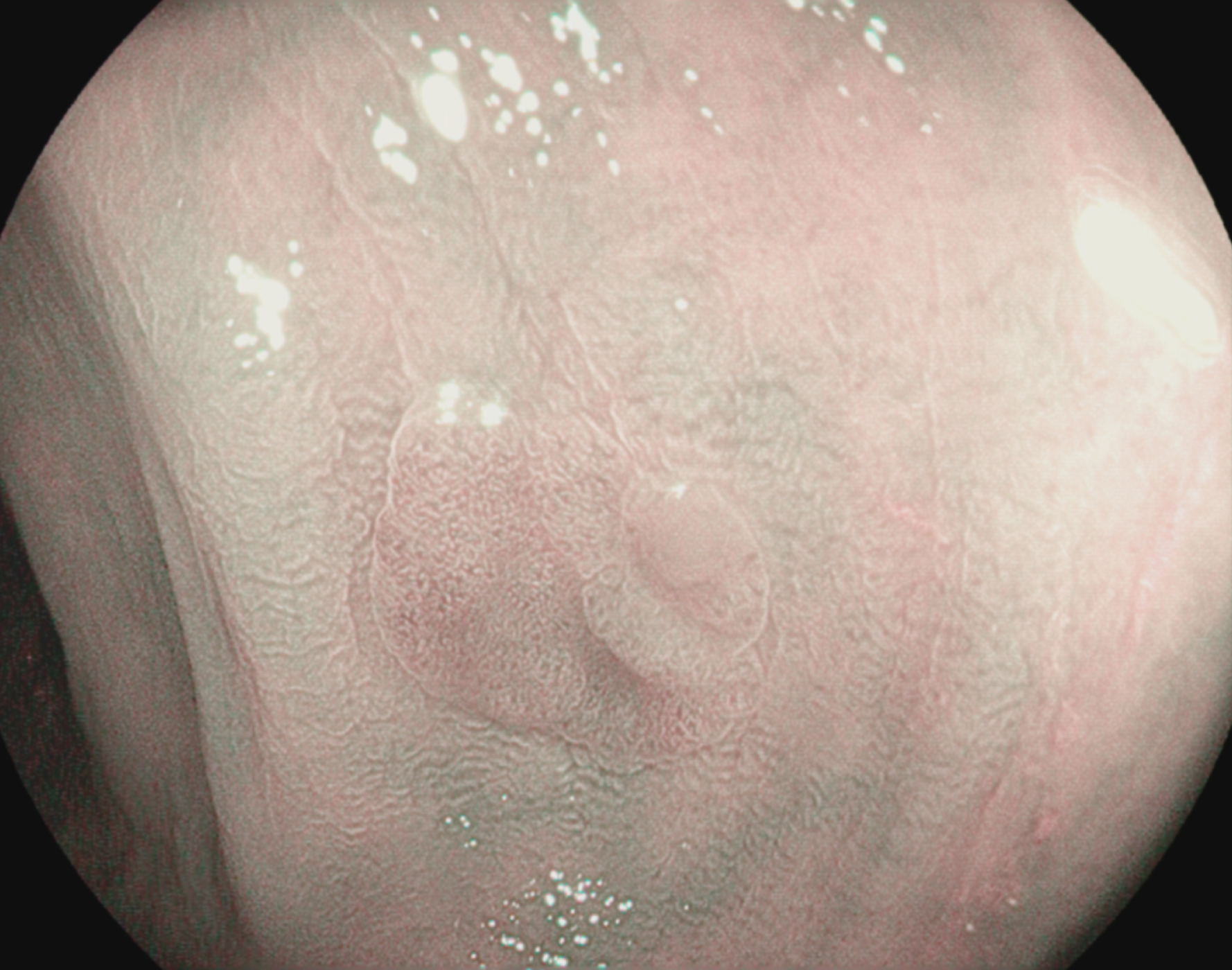 Tubular adenoma with low-grade dysplasia